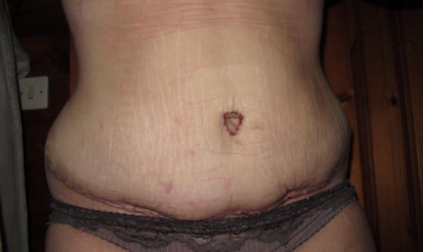 Cicatrice 13 jours post op mon abdominoplastie 94 - Retour de couche 1 mois apres accouchement ...
