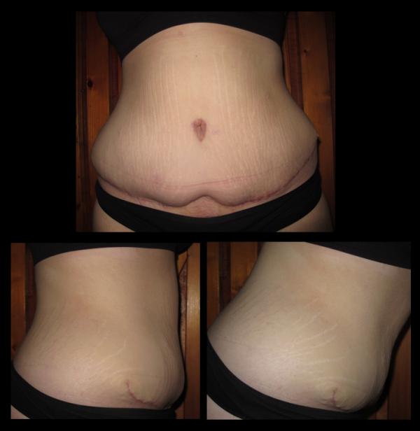 Cicatrice : 2 mois Post-Op... ♥