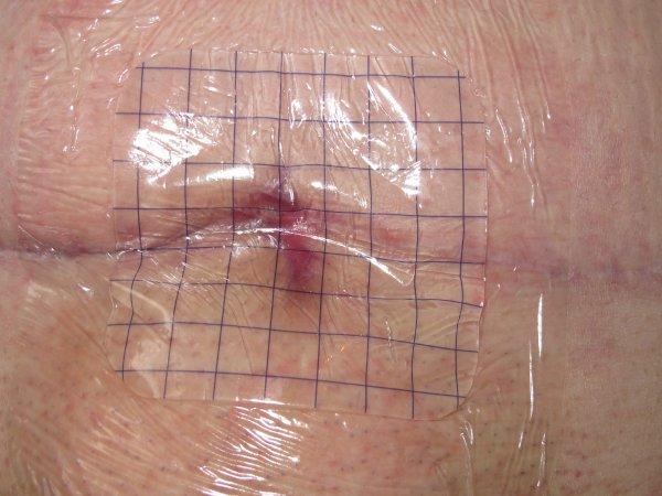 Cicatrice... ♥