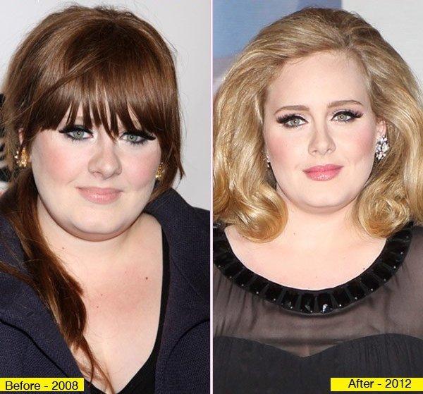 Adele se ha operado la nariz