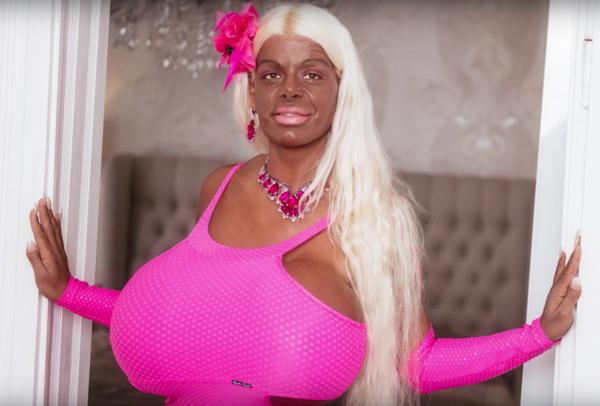 Une Allemande dévoile son secret pour avoir les ''plus gros seins'' du monde (photos)