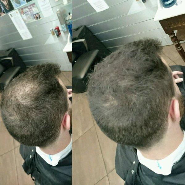 Avant -après  Hair30