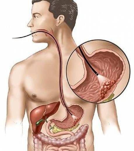 # 16. Fibroscopie et biopsie