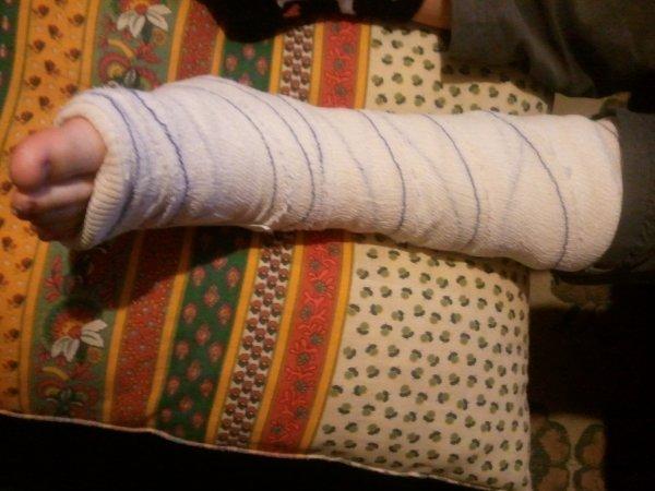le pied de lisa elle s est fait une tres grosse entorce en descendent de la corde a la gym