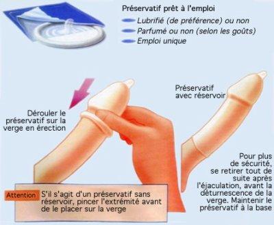 2. Le préservatif masculin