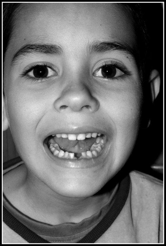 1º dientes....