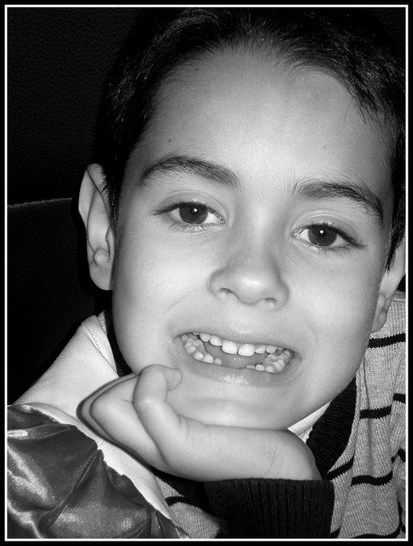 2º diente