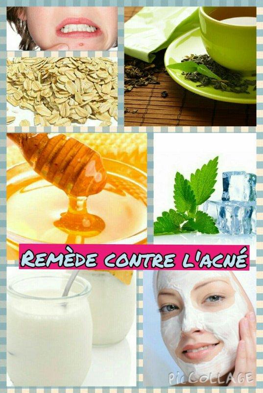 Remède anti-acné (masque et technique préventive)