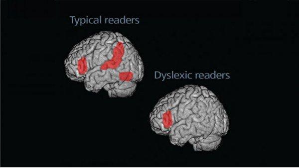 Hors Serie: Dyslexia Game