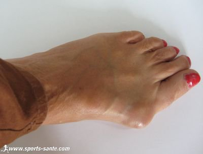 Blessures aux pieds