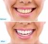 Xpress Whitening's Professional Whitening in Allen, TX