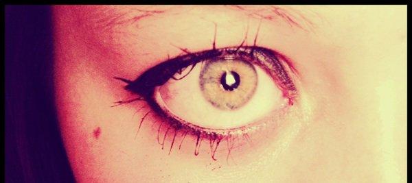 My eyes !!!!