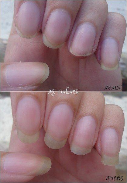 Soin maison pour faire pousser les ongles plus vite