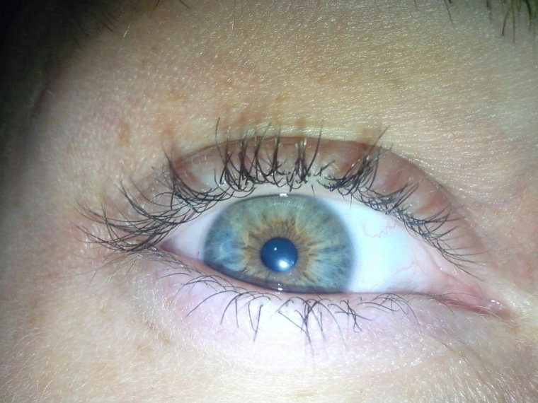 Vous pensé quoi de mon oeil ...?