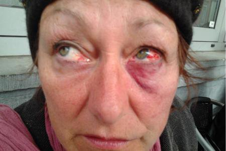 """Renaté, 57 ans: """"J'ai été frappée par la police de Bruxelles"""""""