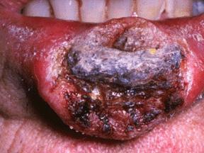 cancer de la l vre inf rieure d 39 un fumeur lee4422. Black Bedroom Furniture Sets. Home Design Ideas