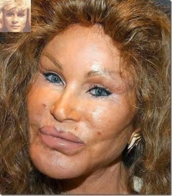 N'ayez pas peur de la chirurgie esthétique ! ! !