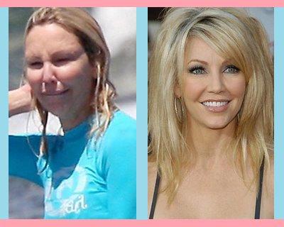 Heather locklear et son abus de chirurgie esthétique . . .