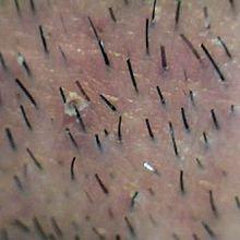 """Cheveu : de 100 000 à 200 000 cheveux sur le """"caillou"""""""