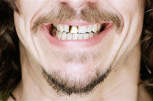 Cauchemar classique : Perdre ses dents