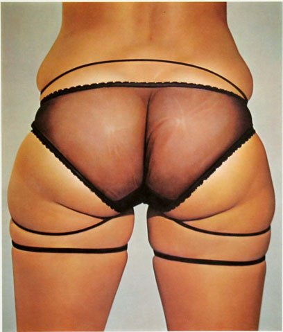 John Kacere : Loretta II 1979 (Peintre)