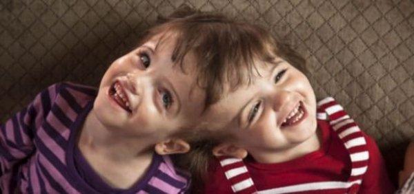 Certains jumeaux siamois peuvent entendre les pensées de l'autre et avoir à travers les yeux de chacun.
