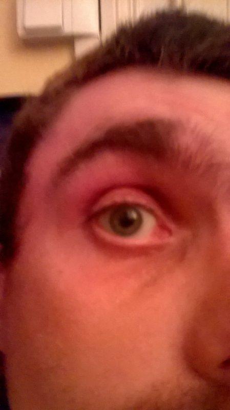 Mon oeil droit