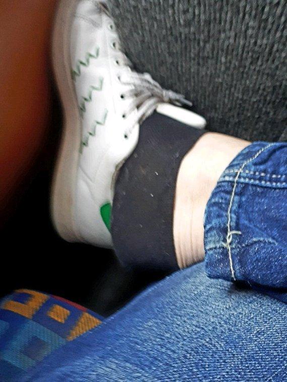 Mau pied en chaussures  et en collants