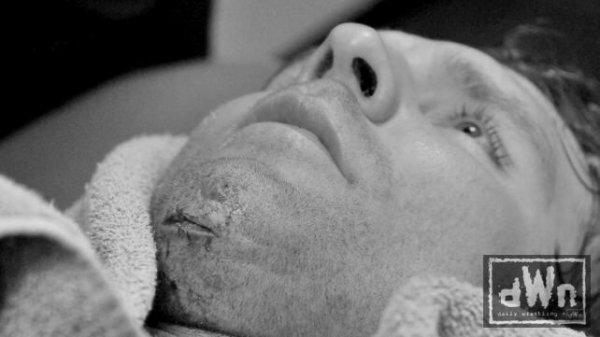 Des points de sutures pour Dean Ambrose