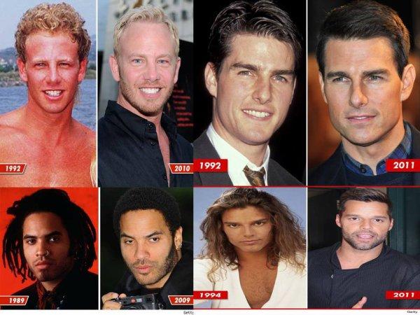 Les stars & le temps qui passe... Botox ou pas ? les photos choc !