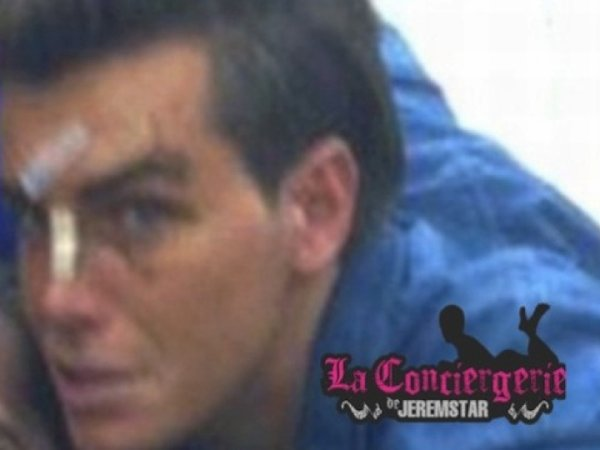 Geoffrey (SS5): La photo de son visage après son agression!