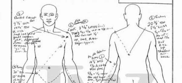"""Koh-Lanta: Le candidat décédé victime d'une """"défaillance cardiaque"""" due à une """"pathologie"""" (pré-rapport d'autopsie)"""