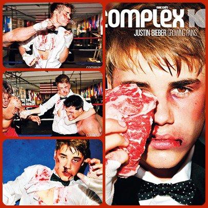 Justin Bieber : battu par un boxeur, le visage en sang