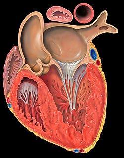 Hypoplasie du ventricule gauche.. c'est quoi le programme Norwood?