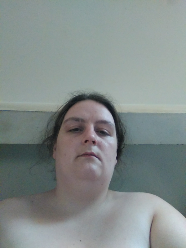 Ma sleeve avec photos avant et 3 semaines après