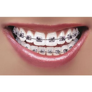 How to use baking soda for teeth whitening at home.