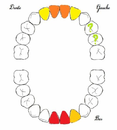8 dents