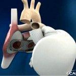 Chirurgie : premiére implantation de coeur artificiel permanent reussie(insuffisance cardiaque).