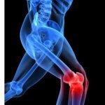 Quelles sont les differences entre arthrite,arthrose,polyarthrite rhumatoïde et goutte????