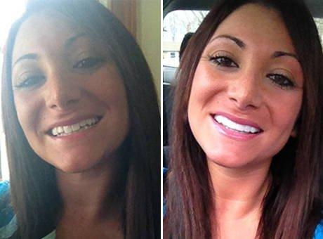 Les nouvelles dents de deena