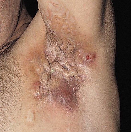 la maladie de verneuil