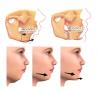 """Dons pour """"Chirurgie maxillo-faciale"""""""