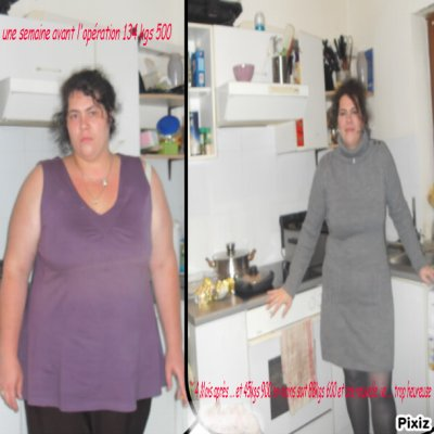 montage photos 4 mois post op