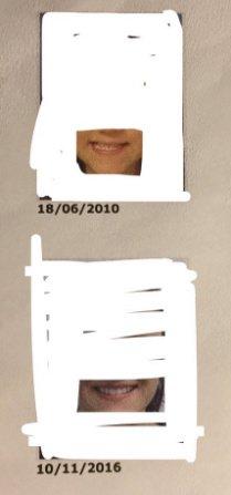 J'ai eu recours à la chirurgie esthétique réparatrice à 16 ans