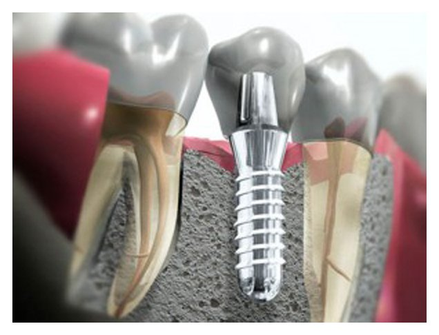 All One Needs to Know About Dental Implants!