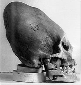 Le pic de Bugarach-1e : Les preuves de l'évidence même
