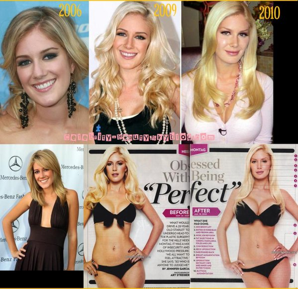 Celebrities With Plastic Surgery Heidi Montag Courteney: HEIDI MONTAG: PLASTIC SURGERY ADDICTION