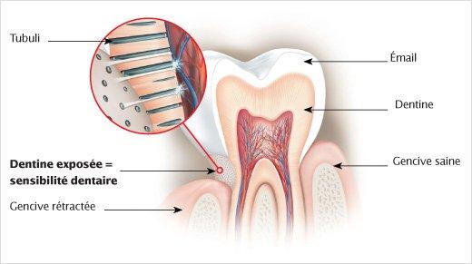 dentifrice sensodyne