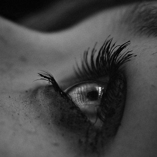 Pas de cicatrice à ta beauté.