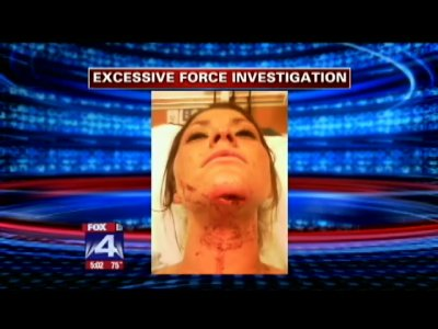 Woman Slammed Face First Into Wall By Trooper Speaks On Ordeal